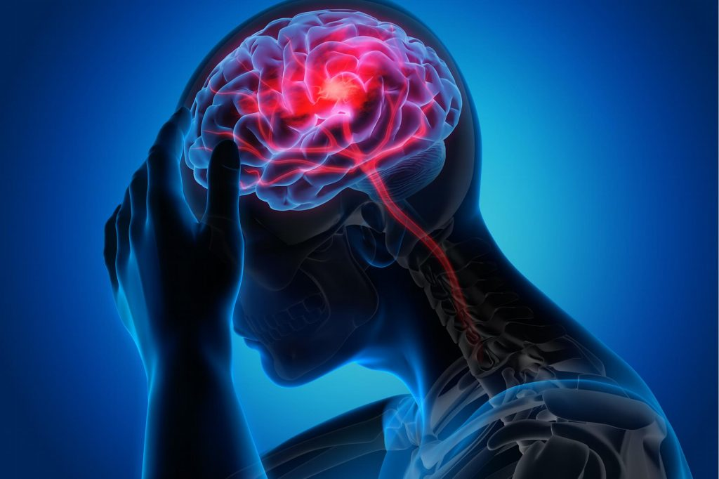 In Canada, there are more than 40 cases of a mysterious neurological disease