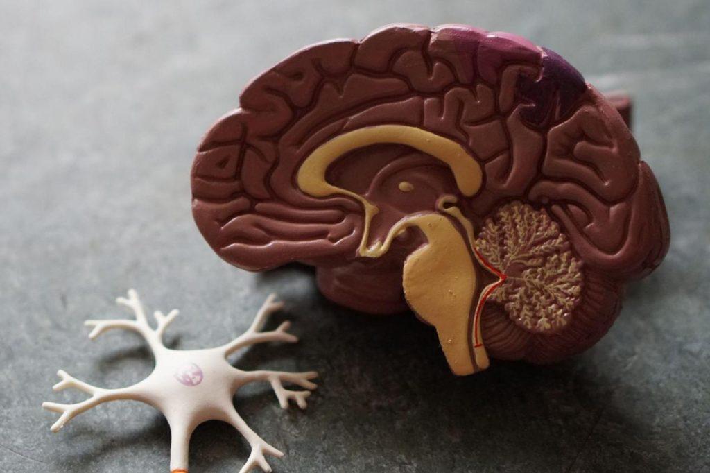 This AI can only diagnose dementia through a brain scan